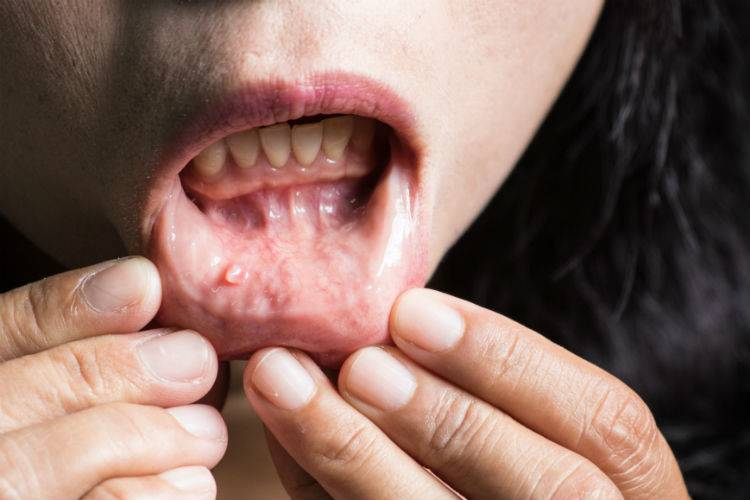 Base of tongue cancer and hpv Oral Cancer Patients Face Better Outcomes warts on hands and elbows